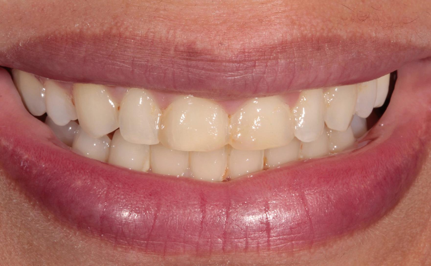 tandblegning før efter
