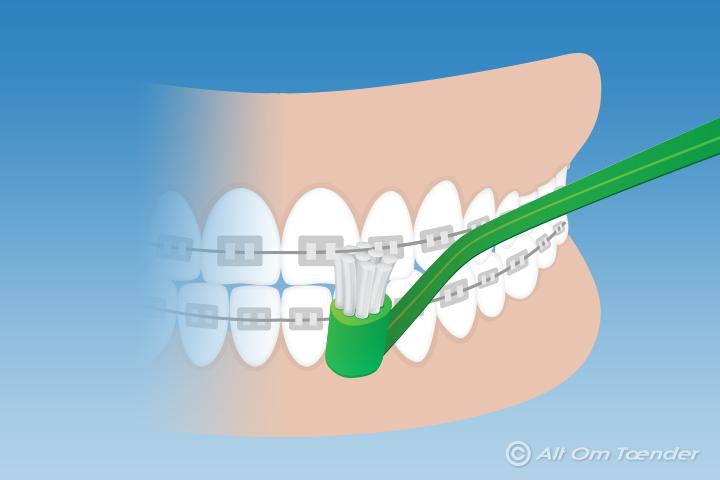 skal man skylle munden efter tandbørstning