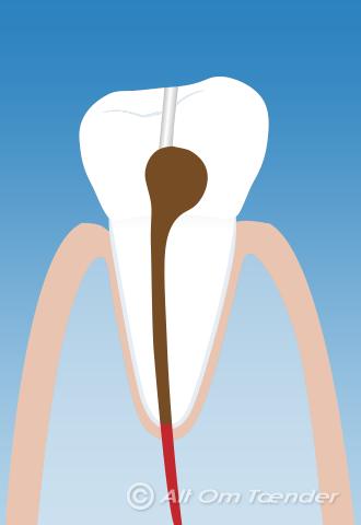 heling efter tandudtrækning