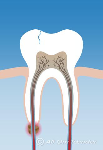 rodbehandlet tand gør stadig ondt
