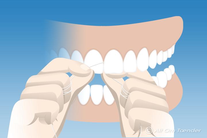 tandtråd før eller efter tandbørstning