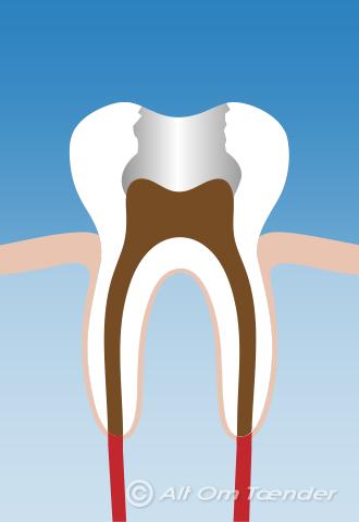 rodbetændelse i tand med krone