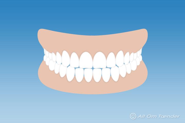 blottede tandhalse alternativ behandling