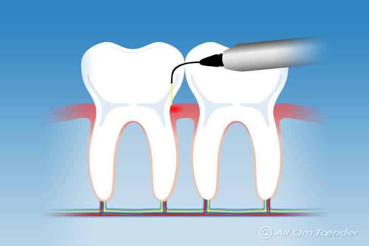pimpsten til tænder