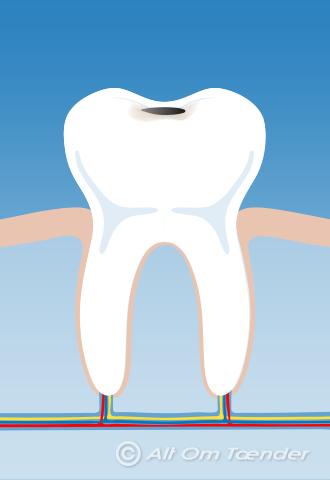tegn på huller i tænderne