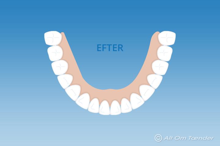fjerne tandsten ultralyd
