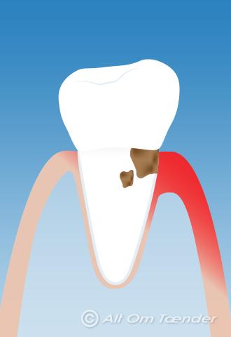hævelse i tandkødet