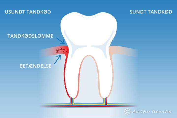 blottede tandhalse behandling