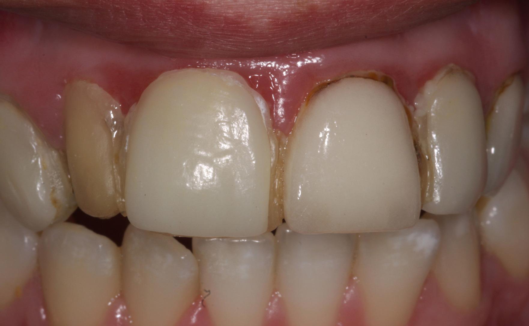 tandkødsbetændelse hvad gør jeg